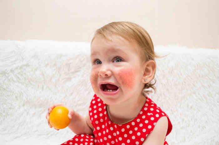 bambina con sfogo allergico