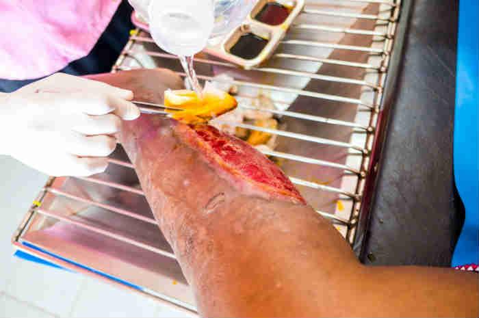 detersione di una lesione