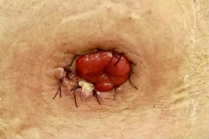 Dispositivi convessi per stomia, cosa c'è da sapere?