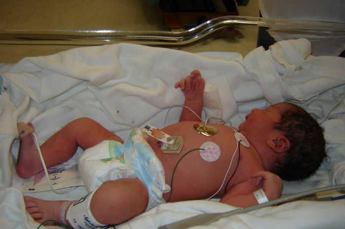 RCP paziente neonatale, principali modifiche nell'algoritmo