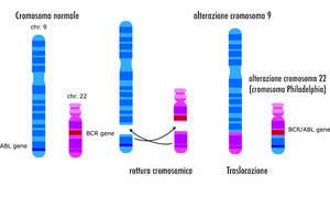 Leucemia mieloide cronica - LMC