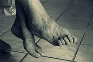 Osteoporosi, cause sintomi e diagnosi