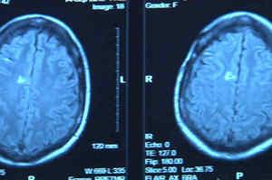 Aneurisma cerebrale: Sintomi, diagnosi, terapia e prevenzione