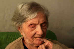 Morbo di Alzheimer, la più diffusa tra le demenze senili