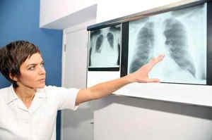 Embolia polmonare: Cause, sintomi e trattamento terapeutico