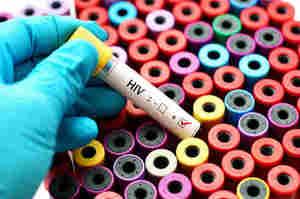 Virus HIV: L'agente responsabile dell'AIDS