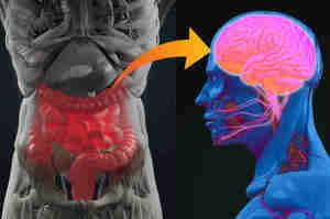 Intestino neurologico, la disfunzione neurogena del colon