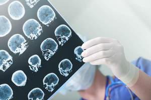 Monitoraggio della pressione di perfusione cerebrale