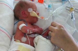 Infermiere in Tin, Terapia intensiva neonatale