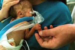 Iperossia nel neonato, le complicanze