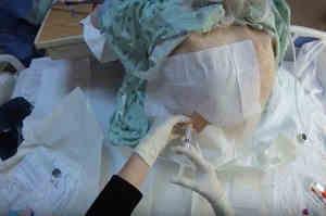 Toracentesi: Evacuazione di liquido dalla cavità pleurica