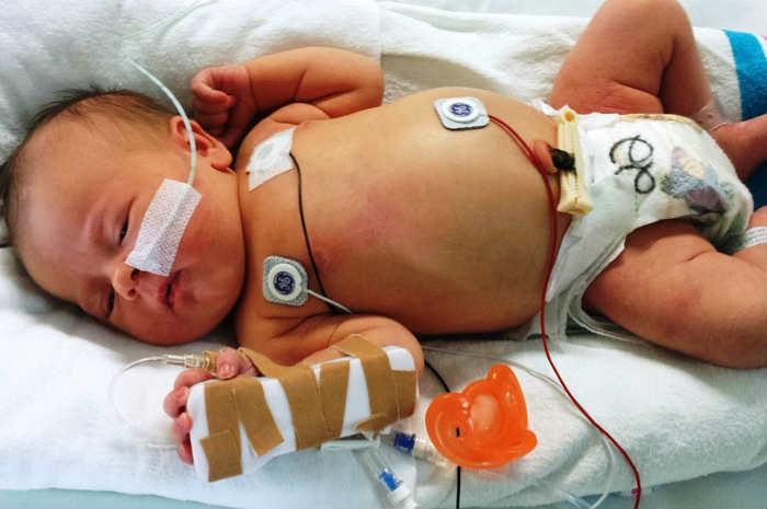 Corso di semintensiva pediatrica: il bambino a rischio