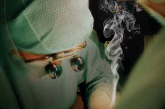 Fumo chirurgico e liquidi biologici, come tutelare la salute