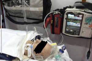 Ventilatori polmonari portatili o da trasporto