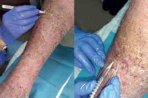 Wound Hygiene, una nuova strategia precoce antibiofilm