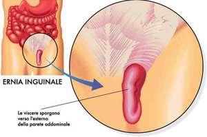 Ernia inguinale