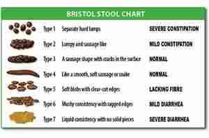 Scala di Bristol: valutare la consistenza delle feci