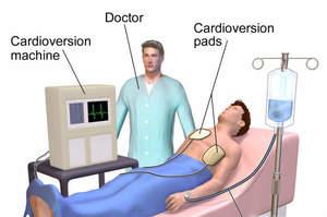 Il corso Fad sulla cardioversione elettrica, 6 crediti
