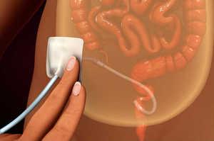Dialisi peritoneale, un meccanismo depurativo endogeno