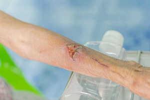 Caratteristiche dell'essudato nella cura delle ulcere cutanee