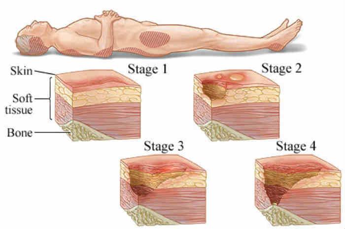 Stadiazione delle lesioni da pressione