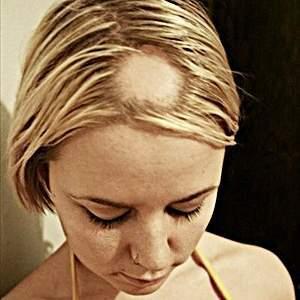 Alopecia aerata: una terapia efficace