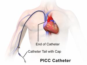 PiccCatheter